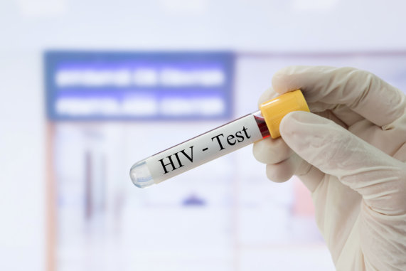 4 Ways You Can Protect Yourself Against HIV