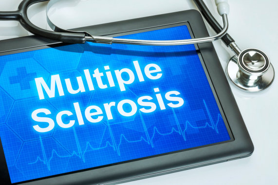 Understanding and Managing Multiple Sclerosis